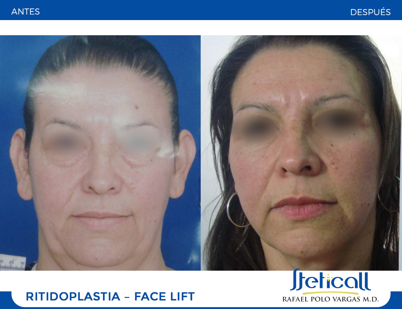 Ritidoplastia (Face-lift)
